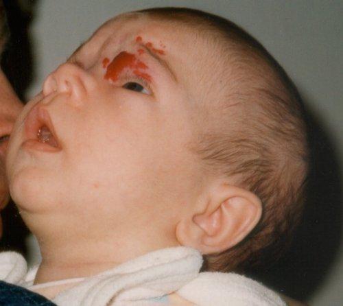 Veszélyes is lehet a tűzfolt, bőrelváltozás, dudor a kisbaba bőrén? Sebész szakorvost kérdeztünk