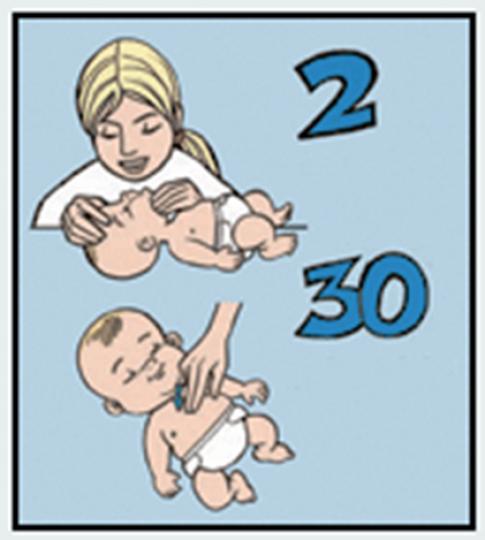 Újraélesztés menete csecsemőknél, kisgyermekeknél - Lépésről lépésre útmutató képekkel, videóval