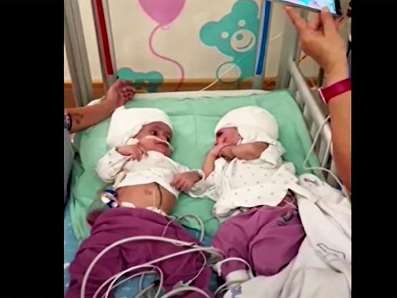 Hátulról, a fejüknél összenőtt ikerpárt választottak szét! - A kislányok a műtét után láthatták először egymást szemtől szemben