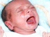 Hasfájós a baba? Lehet, hogy tejallergiája van!