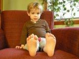 Játékos torna lúdtalp ellen - Ezeket ajánlja a gyógytornász