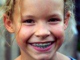 Fogszabályozás gyermekkorban - Ne csak ép, szép is legyen!