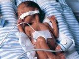 A koraszülött babák túlélési esélyei - videóval