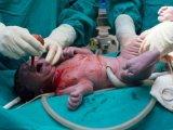 Őssejtlevétel – Életetmentő lehet az újszülött köldökzsinórvéréből nyert őssejt