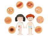 Napallergia, napkiütés, napgomba, fényérzékenység, vitiligo, lentigo, keratózis, melasza - és más bőrbetegségek tünetei