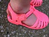 Ezért nem mindegy, milyen cipőt veszel a gyereknek! Nézd meg, milyen sérülést okozott egy műanyag szandál