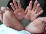 Kéz-láb-száj betegség: egy fájdalmas vírus terjed a gyerekek között - Mi okozza, mik a tünetei, hogyan terjed és miként kezelhető?