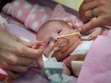 A testén kívül dobogó szívvel született a kislány! Már 3 műtéten van túl, igazi csoda, hogy életben maradt - Fotók!