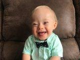 Ezt a mosolygós Down-szindrómás kisfiút választották az év babájának! - Ilyenre eddig nem volt példa