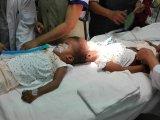 Fejüknél nőttek össze a kislány sziámi ikrek! - Egy magyar orvoscsapat vállalta a bonyolult szétválasztó műtétet