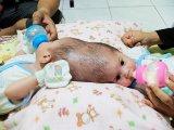 Sziámi ikrek születtek! A koponyájuknál nőttek össze a kislányok, egyelőre még nem tudják őket szétválasztani