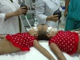 Sziámi ikrek - Magyar orvosok újabb sikeres műtétet hajtottak végre a fejüknél összenőtt bangladesi ikreken
