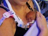 Életben maradt a 24. hétre született kisbaba! Az orvosok szinte lemondtak róla, de ő nem adta fel