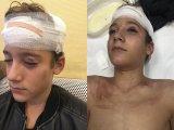 Bokszerrel verte meg iskolatársát egy nyolcadikos fiú a 11. kerületben - Az apuka mesélte el, mi történt