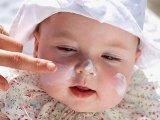 Mivel kenheted a baba bőrét, hogy ne égjen le? Hogyan öltöztesd a babát, kisgyermeket a hőségben? - Nyári tippek a védőnőtől