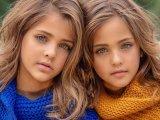Íme, a világ legszebb ikerpárja! - Még csak 8 évesek, de már több mint 1 millió követőjük van az Instagramon