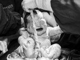 Tényleg olyan életveszélyes, ha a baba nyakára tekeredik a köldökzsinór szülés közben? - Tapasztalt bába válaszol