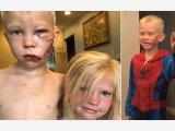 Megmentette a kishúga életét a kutyaharapástól, tiszteletbeli szuperhőssé választották a hatéves kisfiút