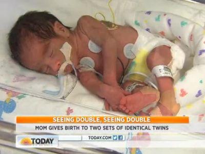 Két egypetéjű ikerpárt szült az anyuka