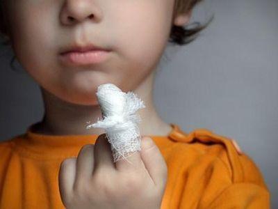 Sebek fertőtlenítése, kezelése - gyermeksebész tanácsai