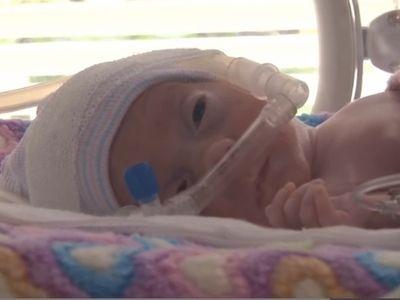 Koraszülött babákról készült film - részletek a Tenyérnyi gyerekek című filmből