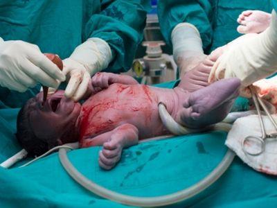 Agyhalott kismama babáját mentették meg az orvosok Budapesten