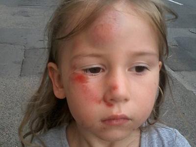 Nem vitte el a taxis a vérző fejű kislányt - Van, aki mégis az anyát támadja