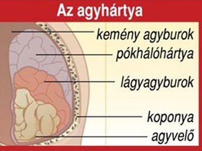 Agyhártyagyulladás: ezekkel a tünetekkel vidd azonnal orvoshoz a gyereket! - A csecsemőket, kisgyerekeket és tinédzsereket veszélyezteti leginkább a betegség