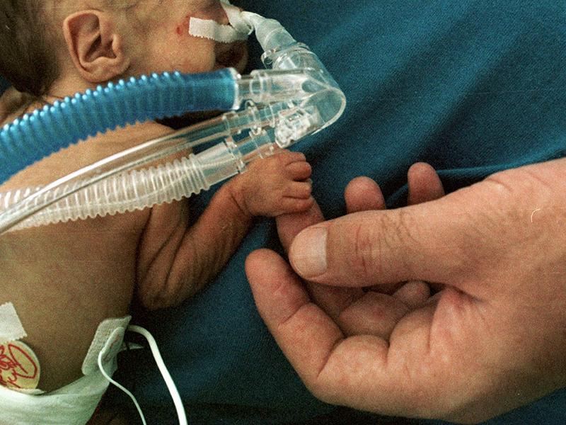 Életben maradt a 24. hétre, 500 grammal született kisbaba! - Ilyenre még nem volt példa eddig a nagyszebeni kórházban