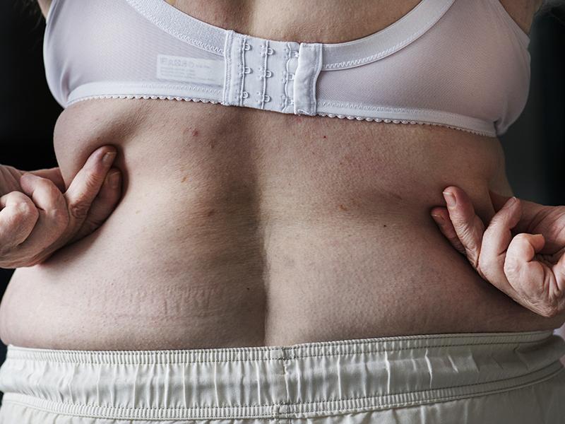 Lassan a dohányzásnál is halálosabb lesz az elhízás! Különösen a nők vannak veszélyben egy friss kutatás szerint