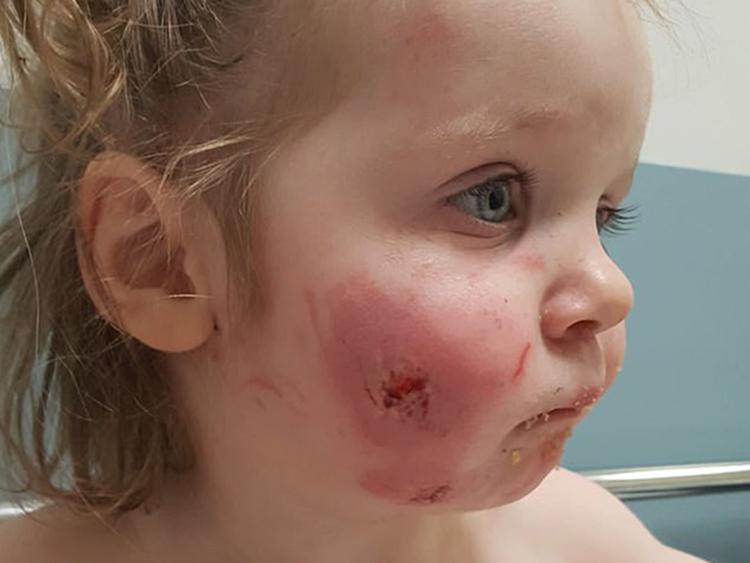 Brutálisan megharaptak egy 17 hónapos kislányt a játszóházban! - 15 harapásnyomot számoltak rajta össze a kórházban