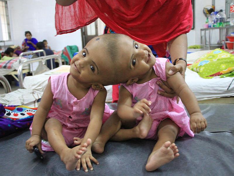 Magyar orvosok választják szét a fejüknél összenőtt kislányokat! - A bonyolult műtétet senki más nem vállalta
